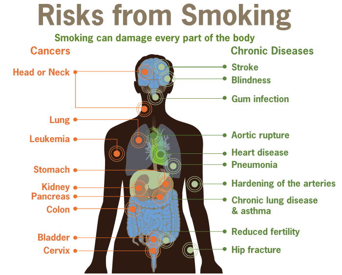 smoking_can_damage_every_part_of_the_body