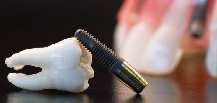 How Root Canals Could Spark Autoimmune Diseases