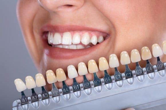 Hübsche Frau mit Zahnfarben-Palette