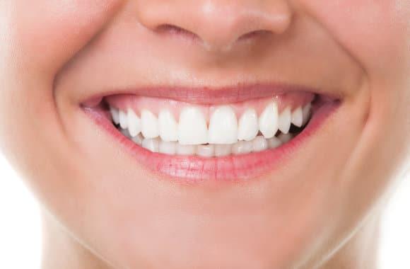 Frau zeigt ihre aufgehellten Zähne