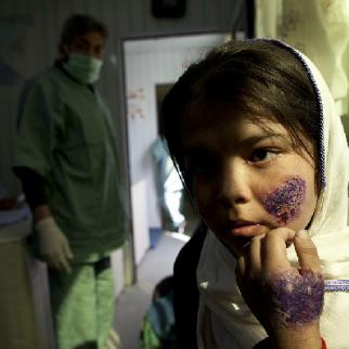 Leishmaniasis patient in a Kabul hospital. (Photo: Paula Bronstein/Getty Images)