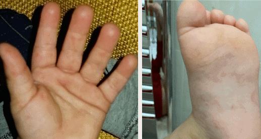 Mani-bocca-piedi: tutto quello che c'è da sapere
