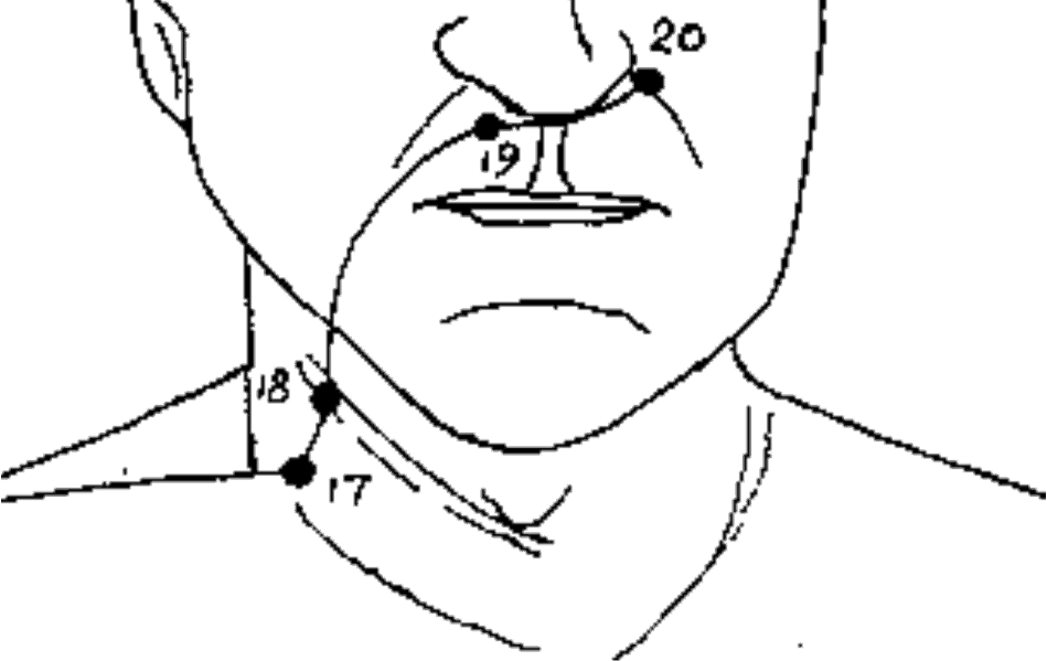LI-20 Painful Face Pressure Points