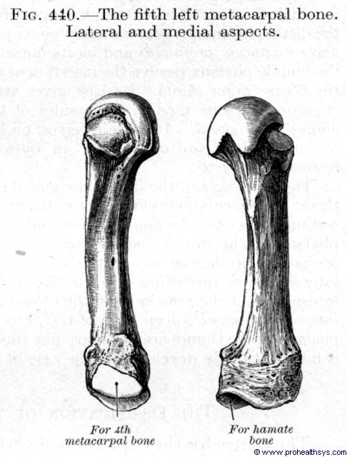 Fifth metacarpal bone lateral and medial views - Figure 440