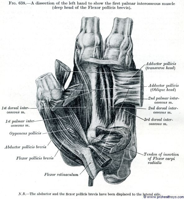 Left hand dissection first palmar interosseous muscle anterior view - Figure 638