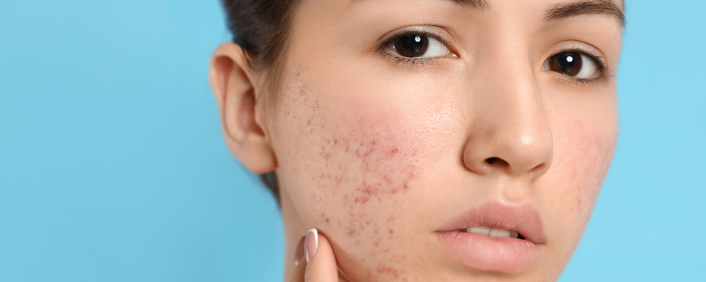 Teen girl with acne problem