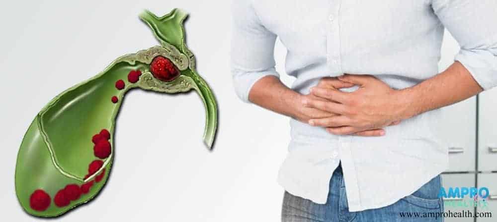 โรคมะเร็งถุงน้ำดี (Gallbladder Cancer)