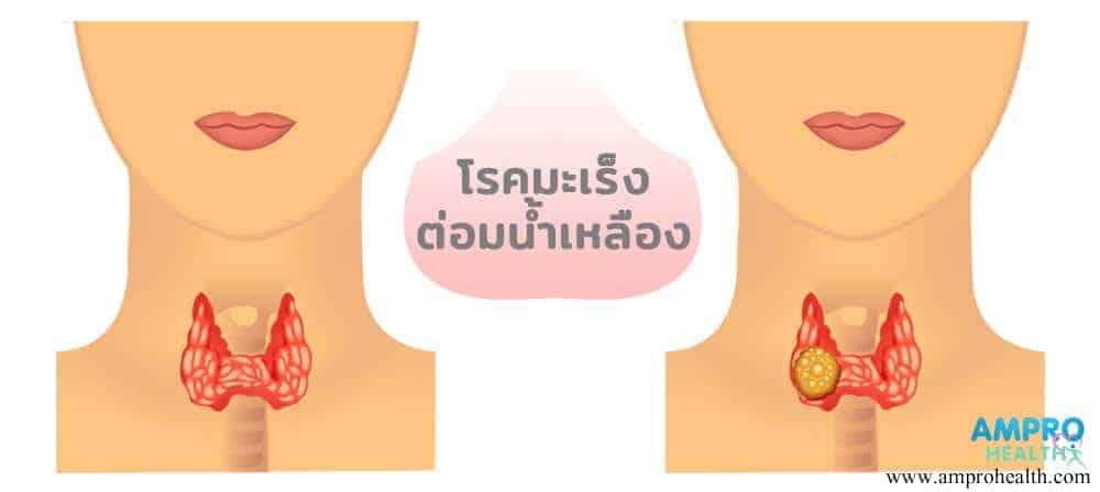 มะเร็งต่อมน้ำเหลืองเกิดขึ้นที่ลำคอ
