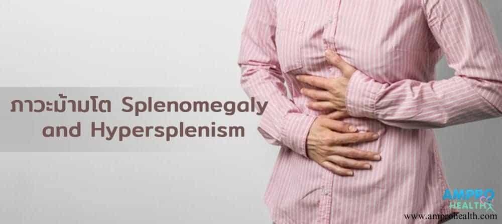 อาการม้ามโตบ่งบอกอะไร ( Splenomegaly)