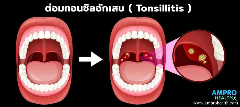 ต่อมทอนซิลอักเสบ ( Tonsillitis )