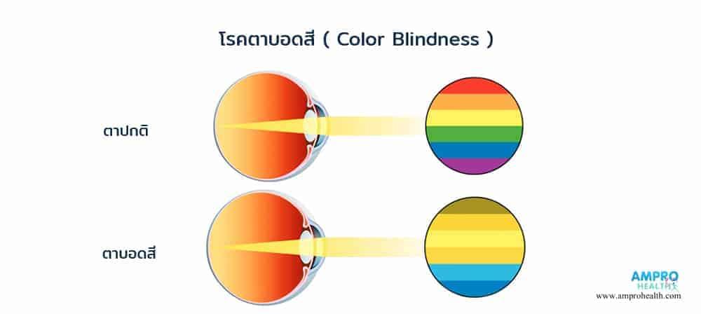 ตาบอดสี เกิดจากสาเหตุอะไร รวมวิธีทดสอบตาบอดสี
