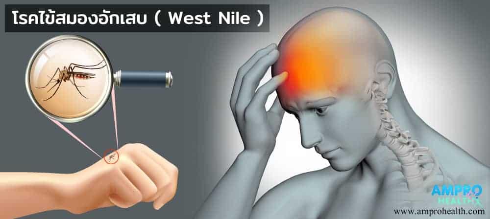 โรคไข้สมองอักเสบ ( West Nile )