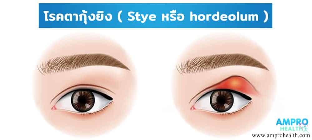 โรคตากุ้งยิง ( Stye หรือ hordeolum )