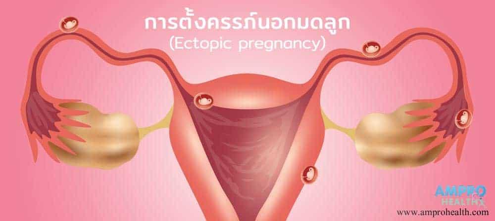 การตั้งครรภ์นอกมดลูก (Ectopic-pregnancy)