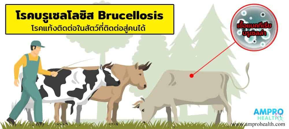 โรคบรูเซลโลซิส Brucellosis
