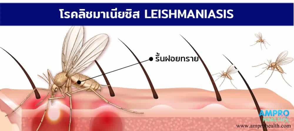 โรคลิชมาเนีย ( Leishmaniasis )