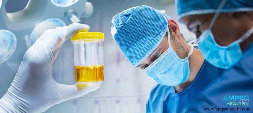 การตรวจปัสสาวะหาค่า Urine Uric acid