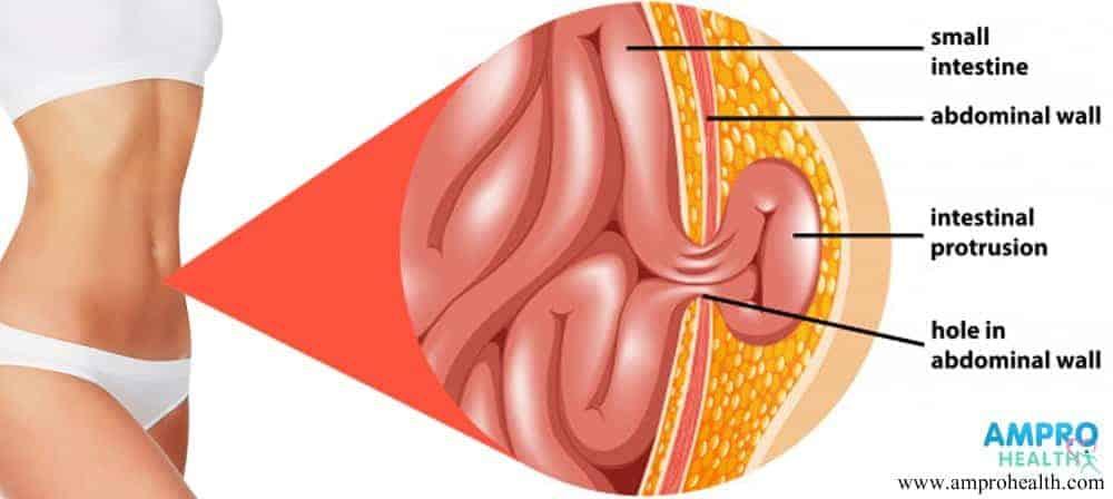 อาการปวดท้อง ( Abdominal Pain )