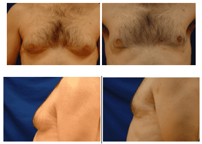 Image result for gynecomastia condition