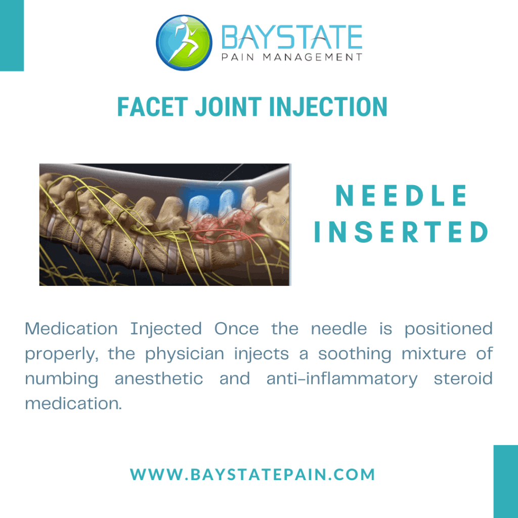 Facet Joint Injection