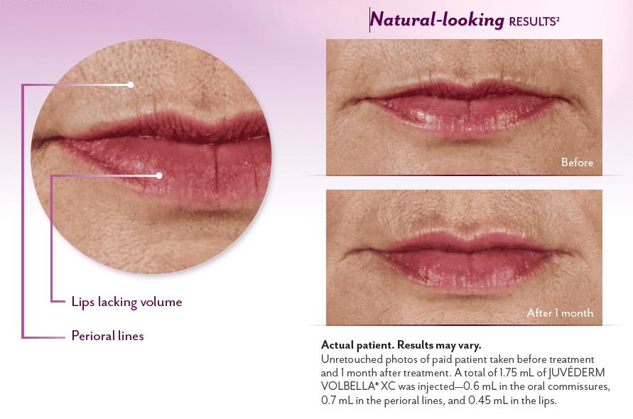 Volbella natural looking lip volume