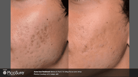 Before and after PicoSure Acne scarring