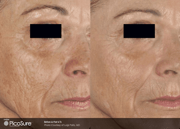 Before and after Picosure Wrinkle