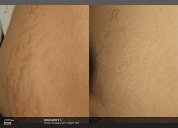 Icon A Bright stretchmark side pre and post