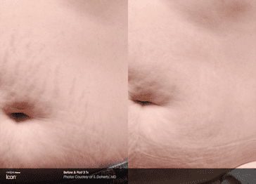 Icon stretchmarks stomach pre and post