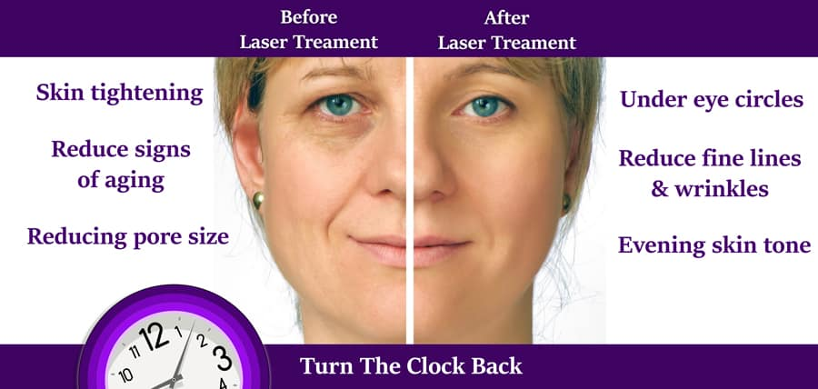 before and after laser skin resurfacing, reduce signs of aging, reducing pore size, under eye circles, reduce fine lines and wrinkles, evening skin tone