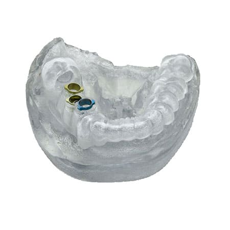 3d printed trasparent dental model