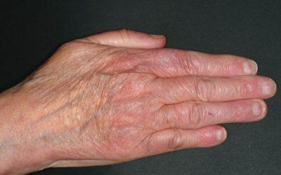 Acrodermatitis Chronica Atrophicans: Symptome & Therapie