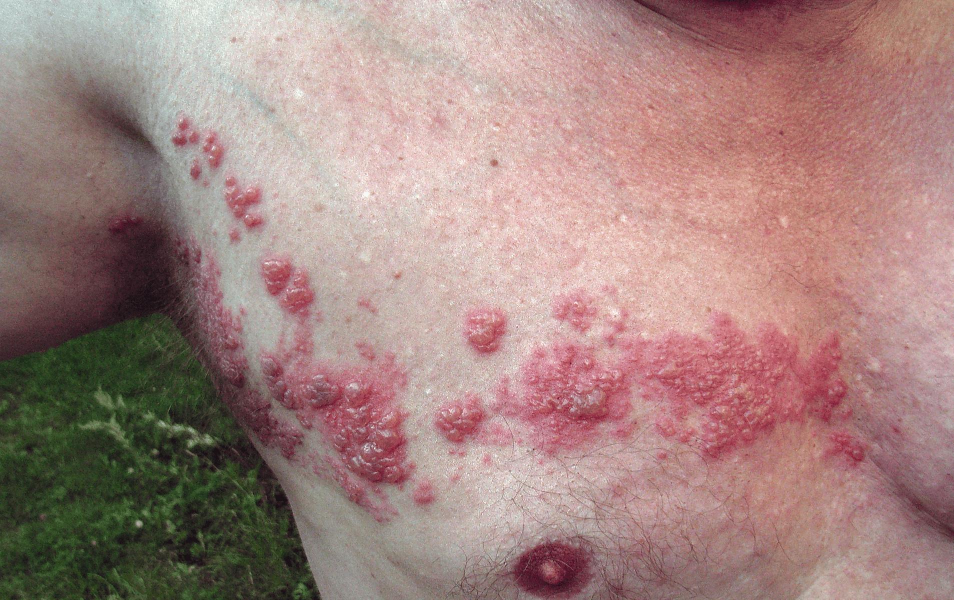 Wieder immer zoster herpes kommt Herpes zoster:
