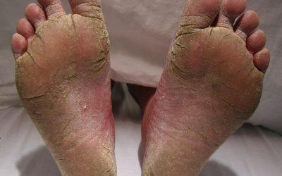 Fußpilz: Ansteckung, Online-Diagnose und Behandlung von Hautärzten
