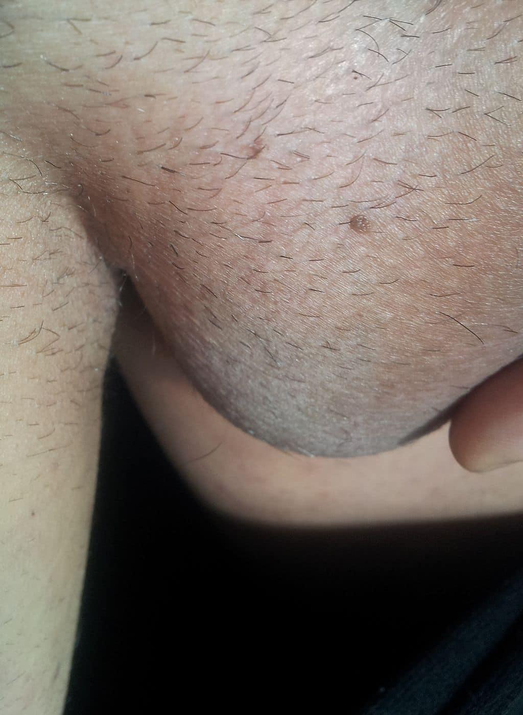 Feigwarze bei einem Mann am Hoden (mittig)