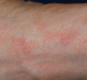Krätze Hautausschlag