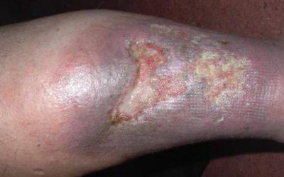 Ulcus cruris (offenes Bein): Ursachen, Diagnose, Therapie & Prognose