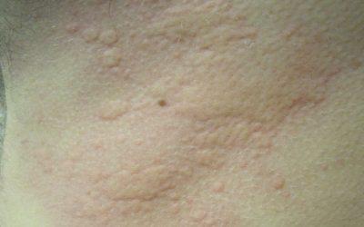 Urtikaria (Nesselsucht) – Ursachen, Symptome, Verlauf und Behandlung