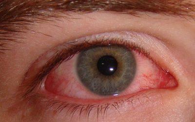 Bindehautentzündung: Ursachen, Aussehen, Online-Diagnose & Therapie