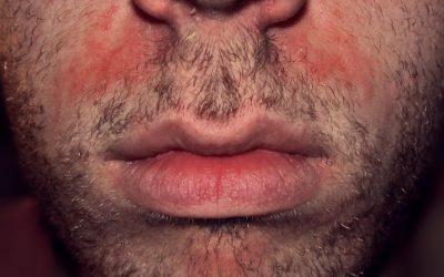 Hautausschlag im Gesicht – Ursachen, Online-Diagnose & Therapie