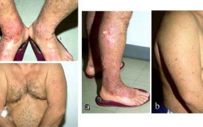 Knoten auf der Haut – Ursachen & Online-Diagnose