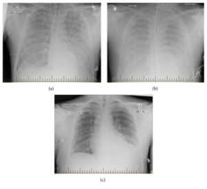 हंटावायरस पल्मोनरी सिंड्रोम Hantavirus pulmonary syndrome