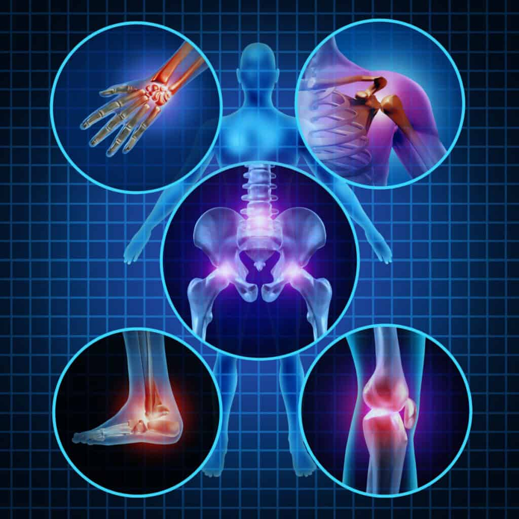 Painful joints human anatomy concept with the body as a group of circular panels of sore areas as a pain and injury or arthritis illness symbol for health care and medical symptoms due to aging or sports and work injury.