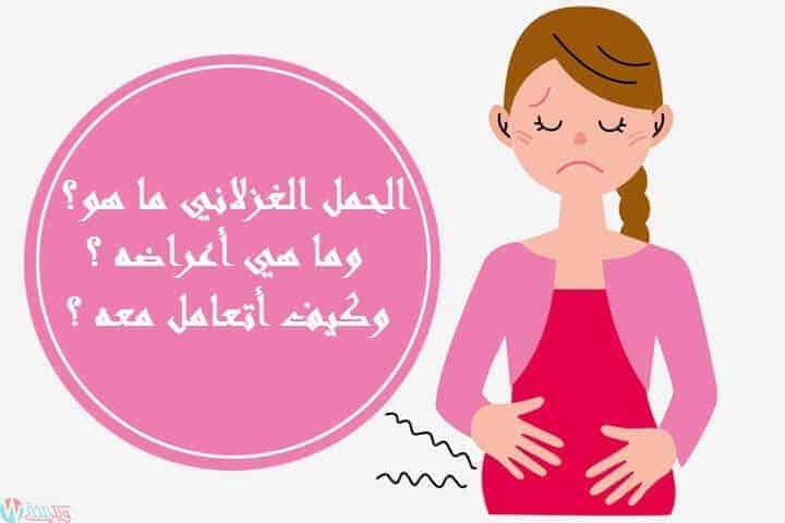 الحمل الغزلاني ما هو وما هي أعراضه وكيف أتعامل معه ؟ 2