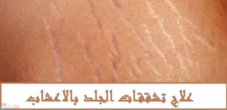 علاج تشققات الجلد بالاعشاب 6