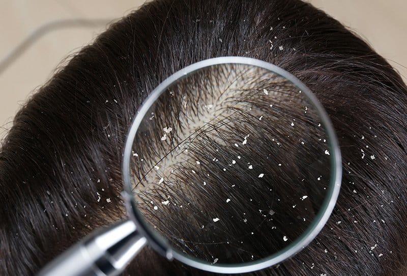 Choisir le meilleur shampoing anti-pelliculaire pour vos cheveux !