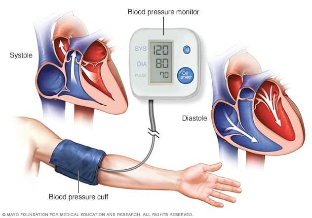 Image result for hypertension