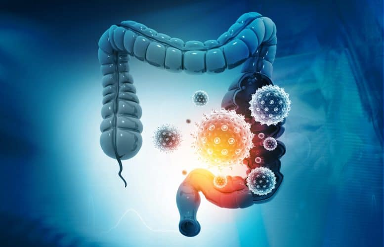 Make-up of Gut Microbiome May Influence COVID-19 Severity and Immune Response