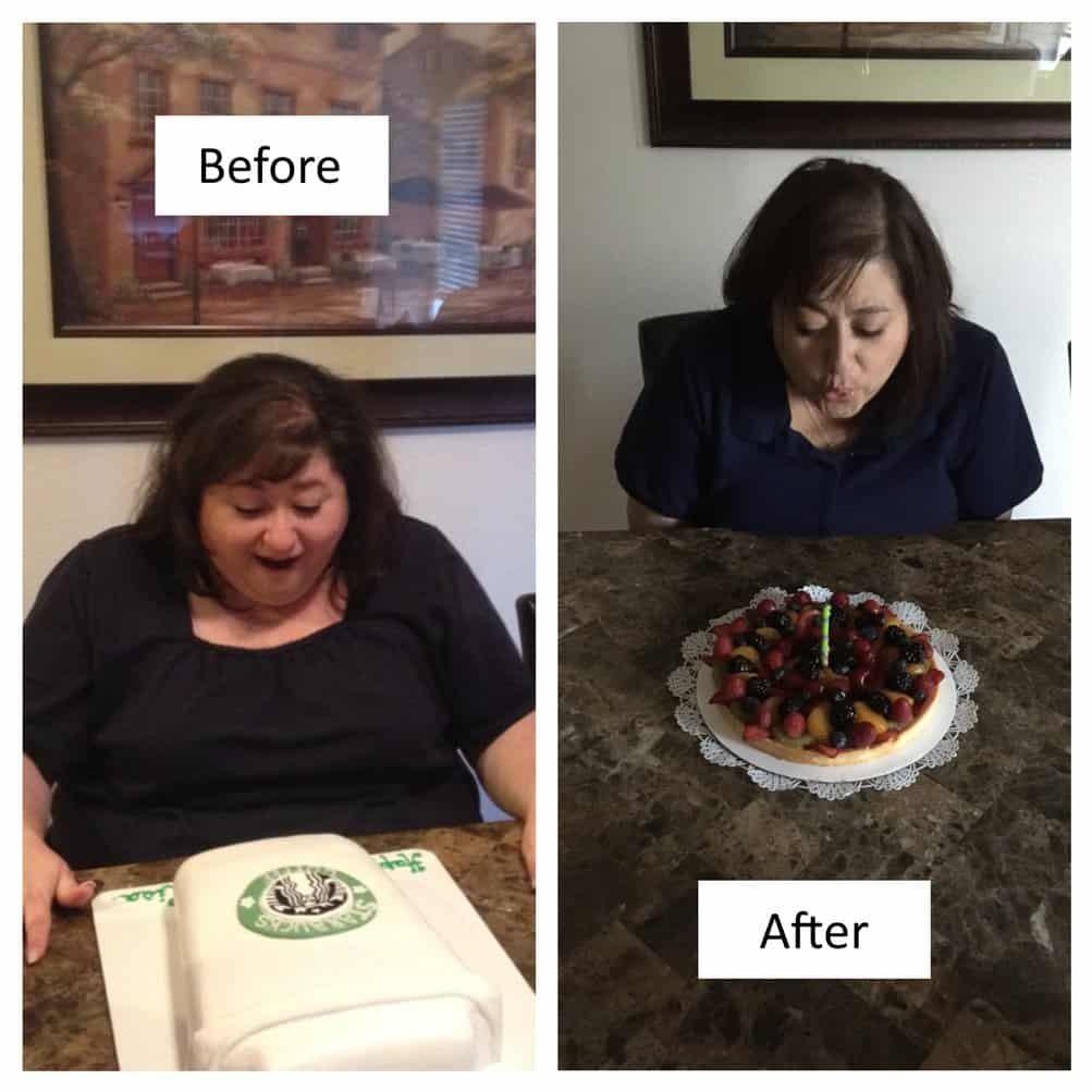 Duodenal Switch Surgery Lose My Weight And Keep It Off Bmcc