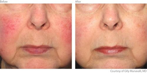 Ipl Treatment For Rosacea Lumenis